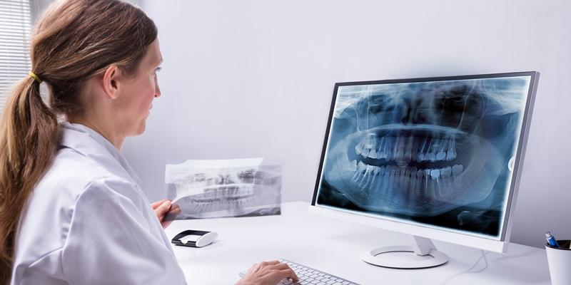 TC Cone Beam: tecnologia sofisticata per il distretto maxillo-facciale