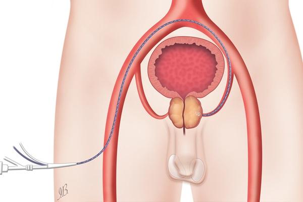 dolore alla prostata durante la notte
