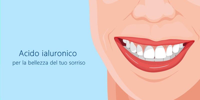 Acido ialuronico per una perfetta estetica dentale
