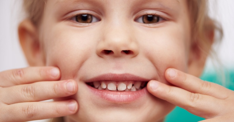 Le agenesie dentali nei bambini: come, quando e perché?