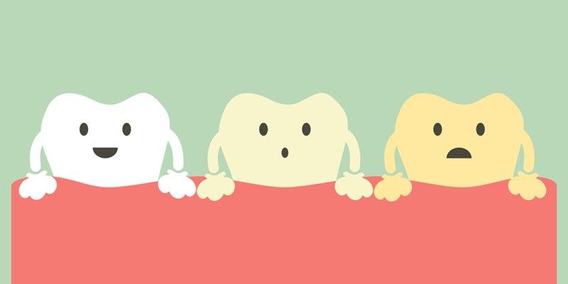 Il sorriso torna a splendere con lo sbiancamento dentale