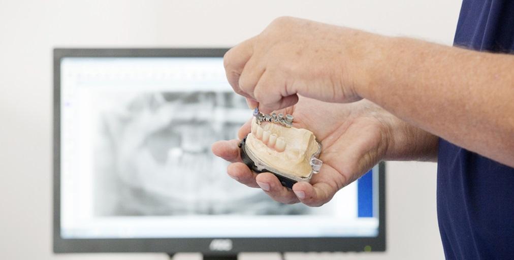 A Villa Lucia Hospital eseguito un impianto dentale a carico immediato su paziente cardiopatico