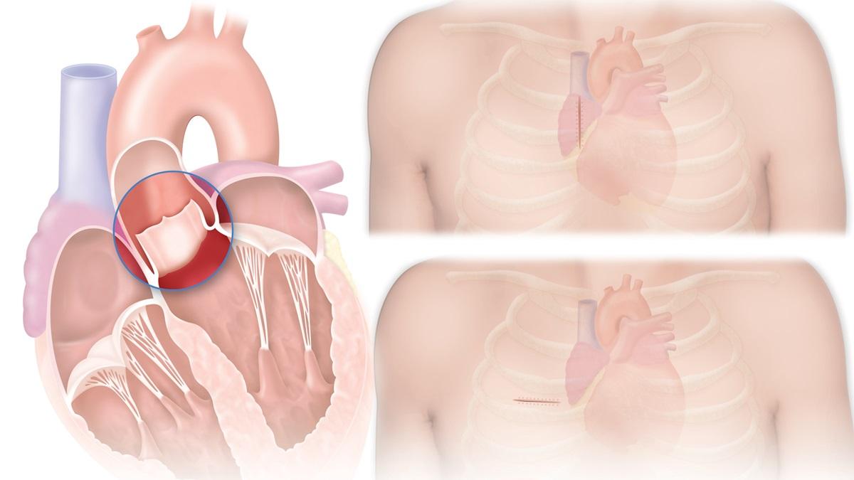 Aortic MICS: i vantaggi dell'approccio mininvasivo nella chirurgia della valvola aortica