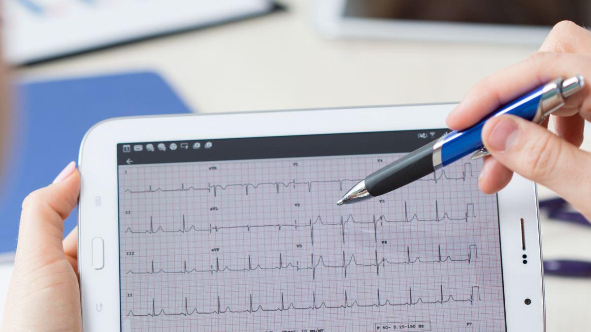 Holter senza fili: innovazione e tecnologia a vantaggio dei pazienti