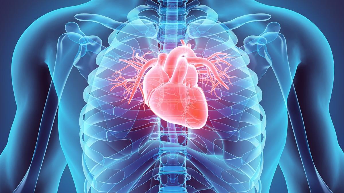 TC per Calcium Score Index per prevenire l'infarto