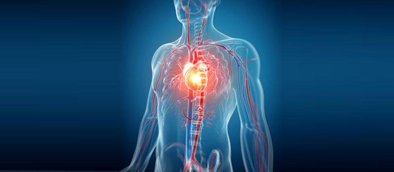 Cos'è la rivascolarizzazione miocardica