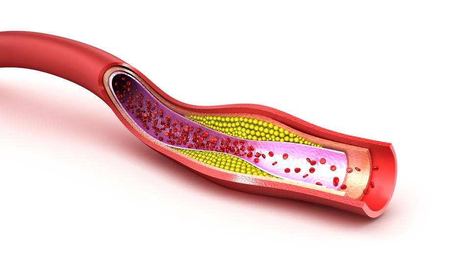 """Più è basso il livello di """"colesterolo cattivo"""" e meno soffre il cuore"""