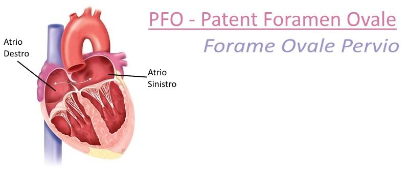 """Forame Ovale Pervio: quel """"buco al cuore"""" che non dà sintomi. Quando e perché è necessario chiuderlo"""