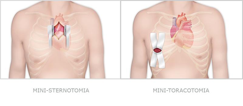 La cardiochirurgia mininvasiva riduce il rischio di complicanze post operatorie grazie ad un ridotto stress infiammatorio