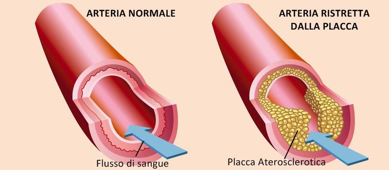 Aterosclerosi: prevenirla, riconoscerla, trattarla