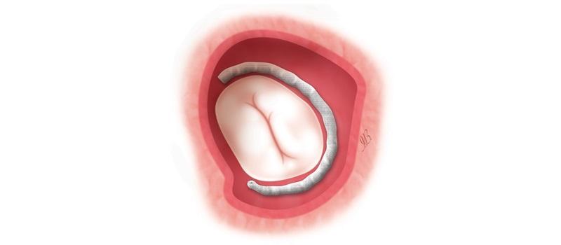 Cardioband, una nuova procedura mini invasiva dedicata al trattamento dell'insufficienza mitralica