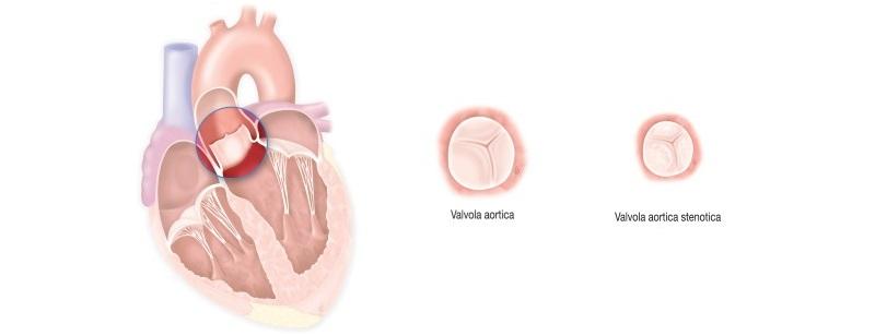 Stenosi Aortica: sintomi, cause e come trattarla