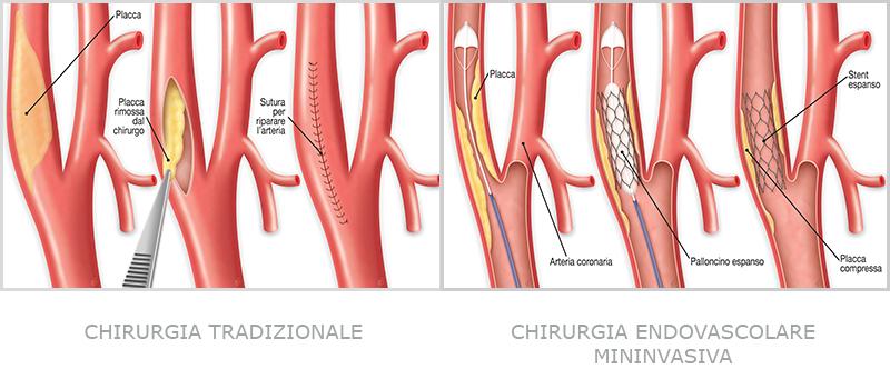 Chirurgia della stenosi Carotidea