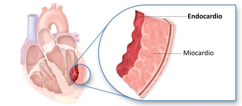 Endocardite: cause, sintomi e terapia