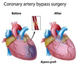 Bypass Aortocoronarico