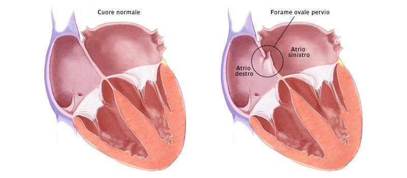 Anomalie del cuore il 40% degli italiani non sa di averle