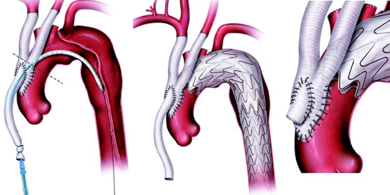 Aneurisma della aorta addominale: Ospedale Santa Maria certificata come eccellenza nazionale