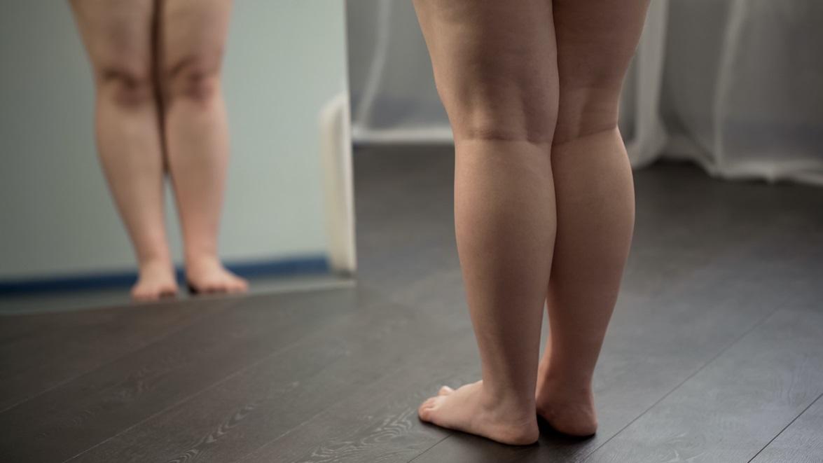 Come affrontare l'obesità?