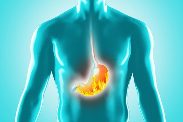 alimentazione esofagite da reflusso
