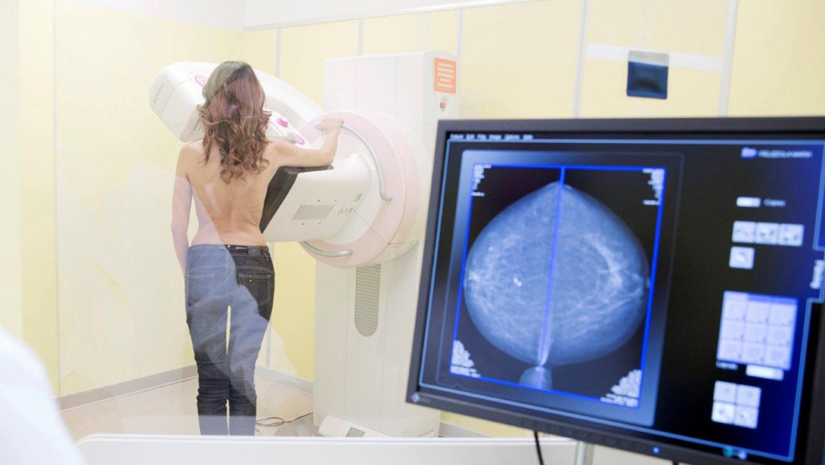 Percorso senologico: dalla prevenzione al trattamento