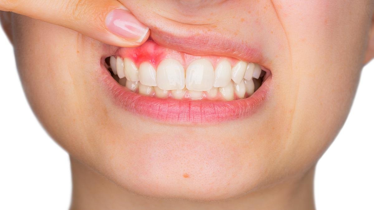 Salute orale: cosa indica la colorazione delle gengive