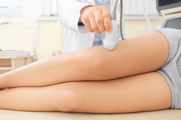 Tecniche d'avanguardia per il trattamento delle vene varicose
