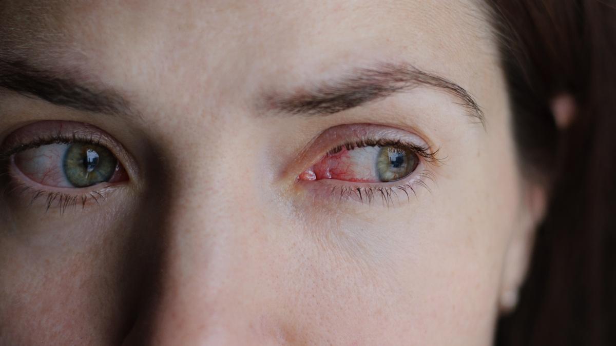 Differenze tra congiuntivite virale, batterica e allergica