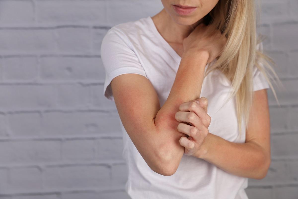 Eczema, dermatite atopica e orticaria: ecco come riconoscerli e trattarli