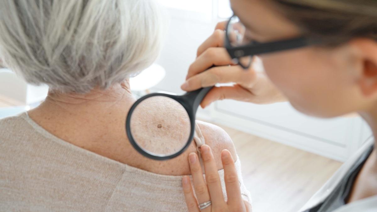 Giornata prevenzione tumori della pelle