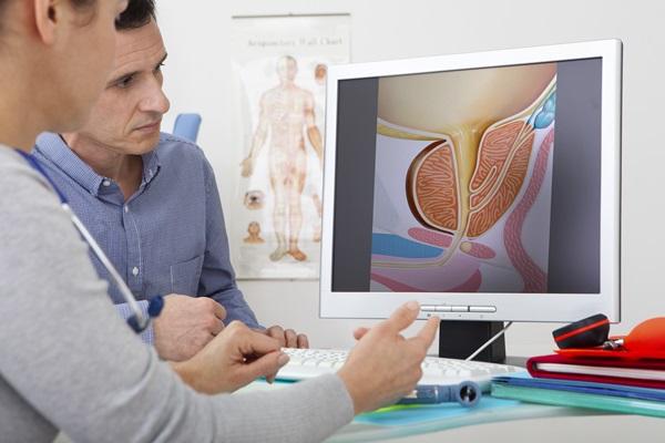 rimozione chirurgica di calcoli prostatici